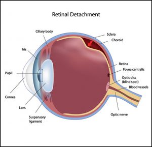 Invisalens - retinal detachment